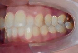 奥歯が低い、噛み合わせが深い