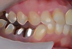 歯列が乱れ下顎が奥に入ってしまっている